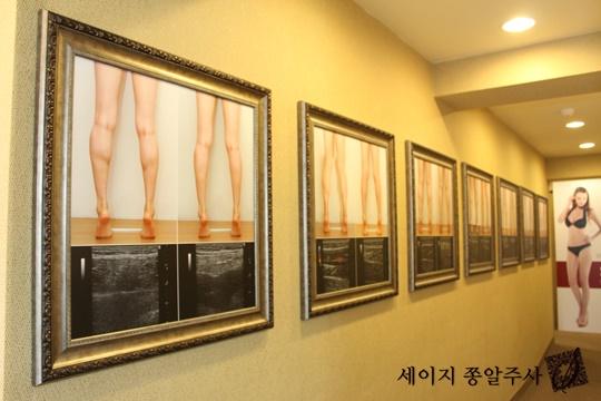 [한국소비자만족지수1위] 세이지 쫑알주사, 다리 성형 중점 진료 병원